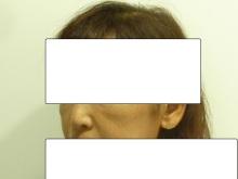 ループリフト手術前の40代女性の斜め横顔