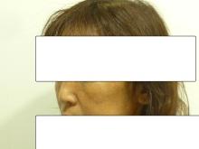 ループリフト手術直後の40代女性の斜め横顔