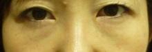 目の下の脂肪除去1か月後