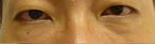 目の下の脂肪除去3週間後