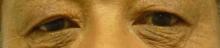 60代の男性の目の上下のタルミ取り手術前