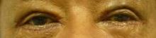 60代の男性の目の上下のタルミ取り手術直後