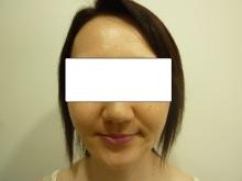 40代女性のトータルフェイスリフト手術後の写真その1