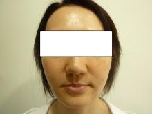 40代女性のトータルフェイスリフト手術後の写真その2