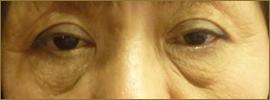 【術前】60代の女性 目の下のたるみ・脂肪取り 実施事例その2