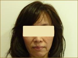 【術前】50代の女性 トータルフェイスリフト 実施事例