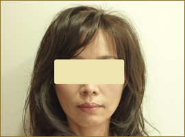 【術後】50代の女性 トータルフェイスリフト 実施事例
