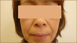【術前】40代の女性 トータルフェイスリフト実施事例その1