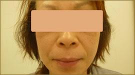 【術後】40代の女性 トータルフェイスリフト実施事例その1