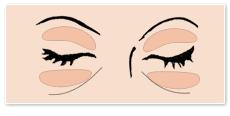 目の上、または下の脂肪取りのイラスト