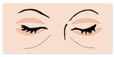 目の下のたるみ取りのイラスト