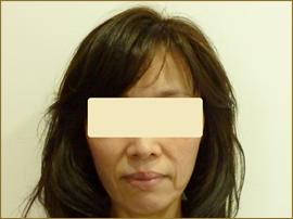 【術前】50代の女性 トータルフェイスリフト+フェイスリフト(あご) 実施事例