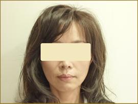 【術後】50代の女性 トータルフェイスリフト+フェイスリフト(あご) 実施事例
